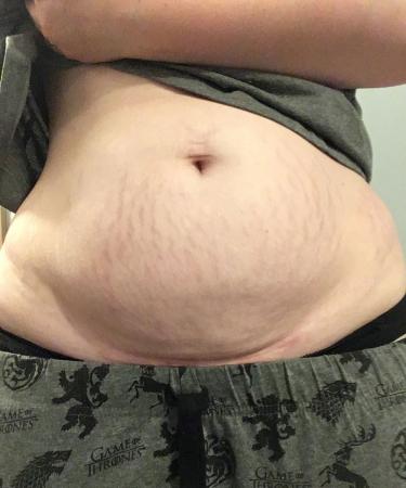 Roxanne, 7 maanden na bevalling