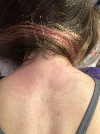 De lichte rode vlekken na de behandeling.
