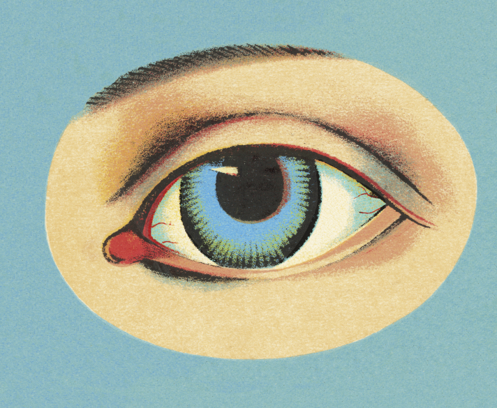 L'hyperesthésie visuelle