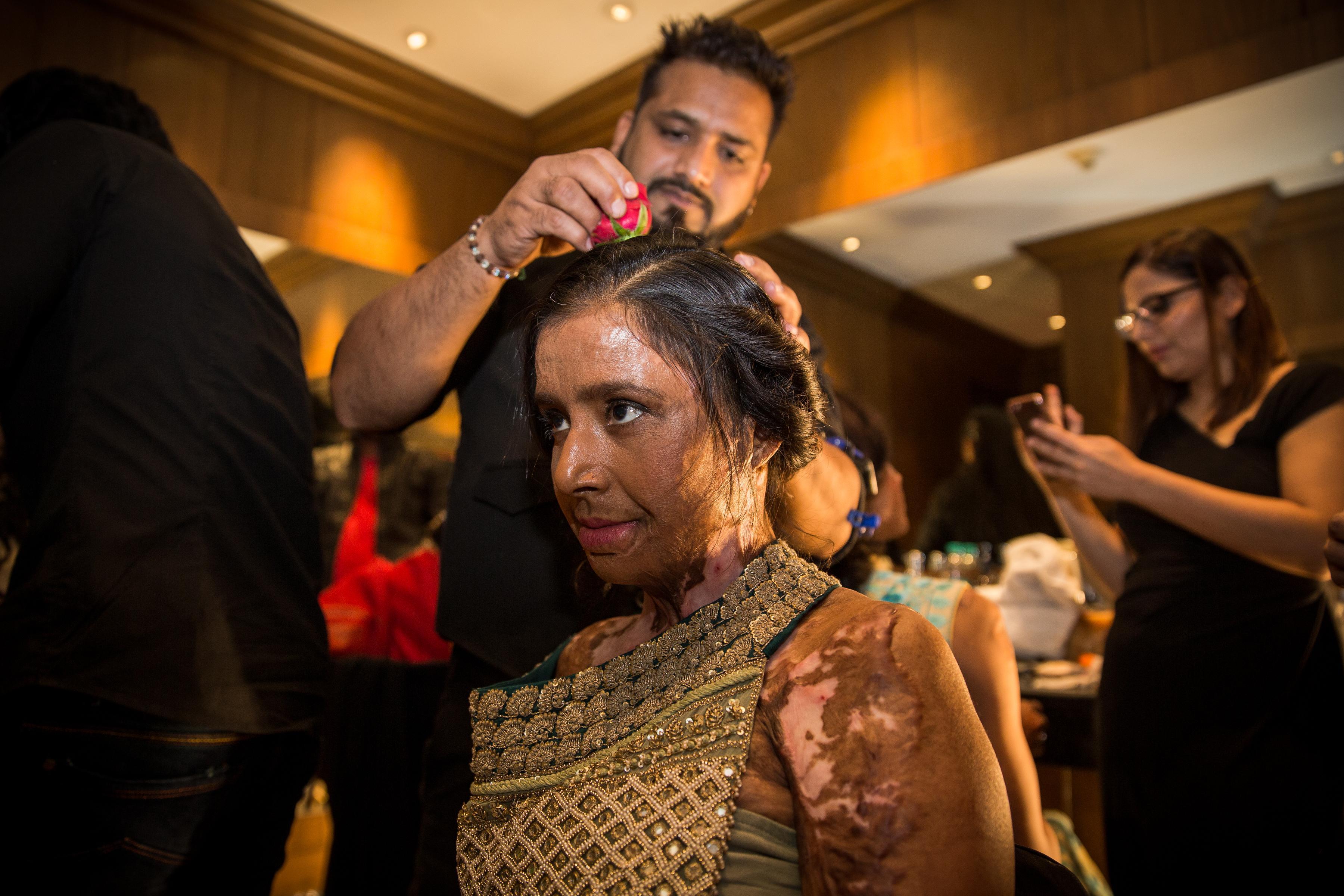 victimes d'attaques à l'acide lors du défilé Make Love Not Scars