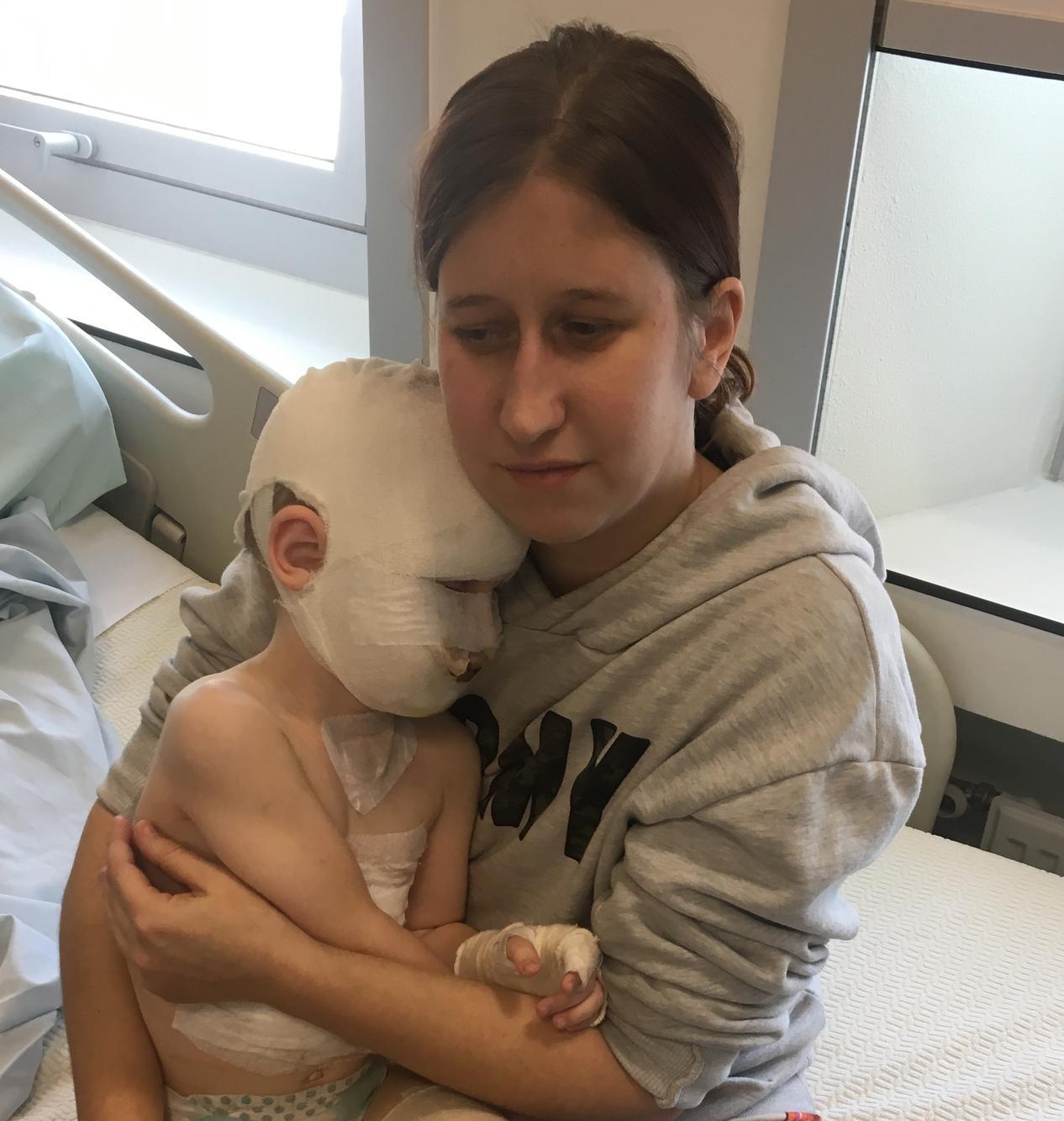 Lander zoekt vaak troost in de armen van mama Bianca Ghijs in het Brandwondencentrum.