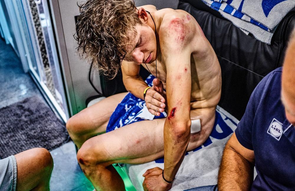 Wielrennen is niet voor doetjes. Dat blijkt ook uit dit beeld, genomen tijdens de Tour de France. Bob Jungels meet de schade op na de rit met aankomst in Roubaix. Als hij deze foto later op zijn Instagram plaatst, krijgt die bijna net zoveel likes als de foto van zijn overwinning in Luik-Bastenaken-Luik. Koersliefhebbers houden van winnaars, maar bewonderen ook de doorzetters. Bij de koers hoort tragiek.