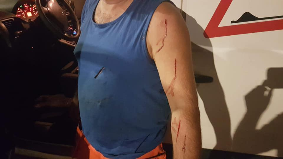 Arbeider in havengebied met breekmessen aangevallen door transmigranten