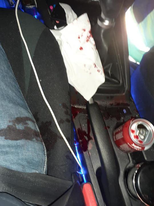 Pittemnaar slachtoffer van zware verkeersagressie: klemgereden en neusbreuk geslagen