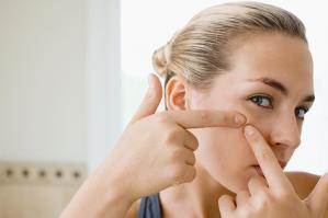 acne volwassenen