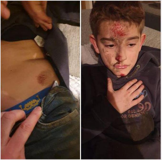 De 9-jarige Leon liep verschillende verwondingen op, vooral in het gezicht.©Olaf Verhaeghe gf