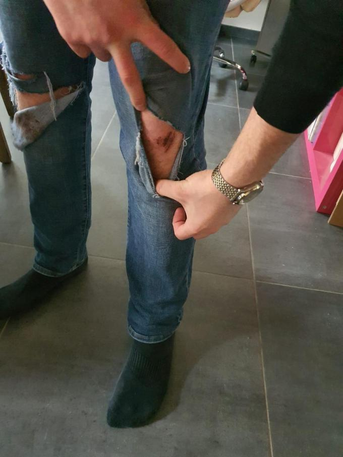 """""""Ze gooiden mij op de grond, waarbij ik mijn knieën schaafde en mijn kleren scheurde"""", zegt Teo.© gf"""