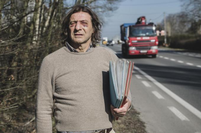 De ogen van Frank Delaere zitten nog altijd blauw en dik. Vorige week vrijdag werd hier aangevallen langs de Brugsesteenweg nadat hij een bestuurder aanmaande trager te rijden.© Olaf Verhaeghe