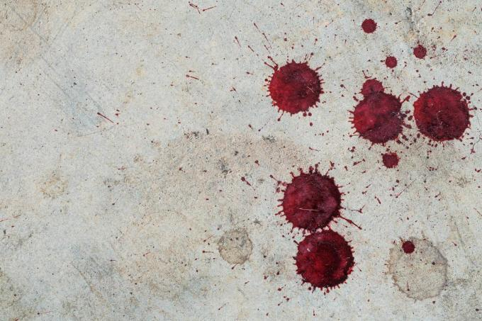 De man schrok van het bloed dat hij zag bij zijn broer en hij verwittigde een dokter.©ratsadapong Getty Images/iStockphoto