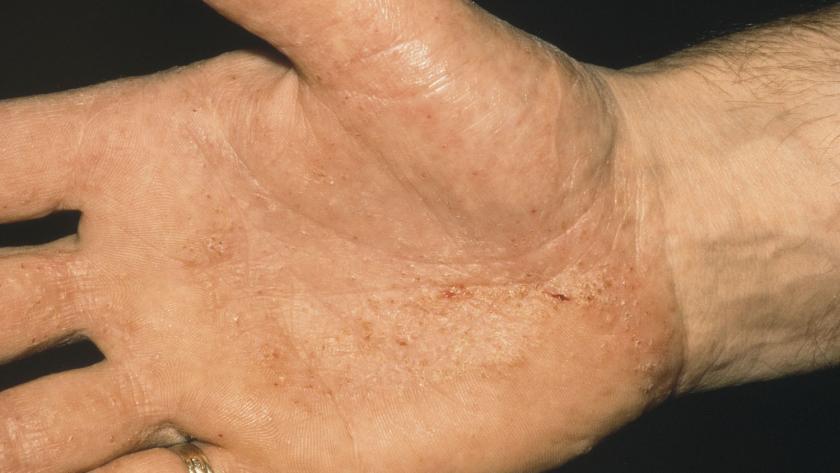 La dyshidrose, l'eczéma des mains et des pieds - Femmes d'Aujourd'hui