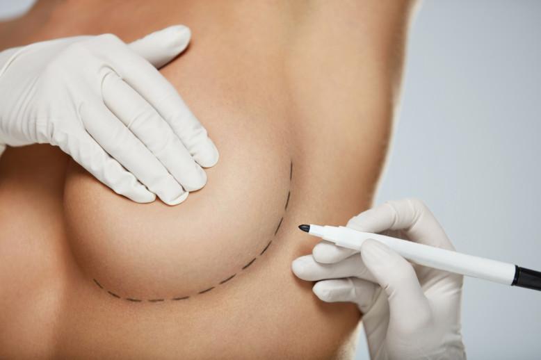 implants mammaires